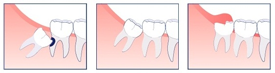Wisdom-teeth 1
