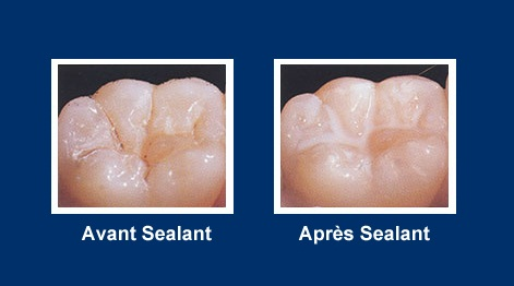 sealant site OK